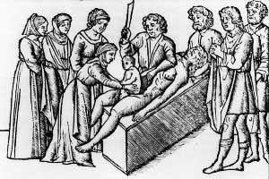 Quem inventou a cesariana?